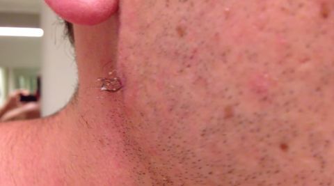 man pulls out the longest ingrown hair in the history of the world