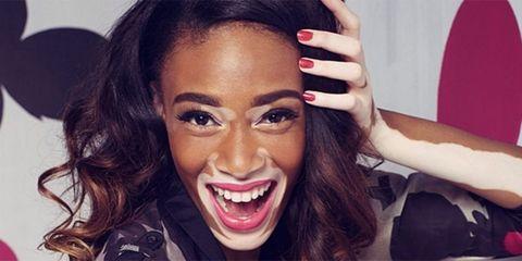 America's Next Top Model contestant and 'Vitiligo Spokesmodel' Winnie Harlow - Cosmopolitan.co.uk