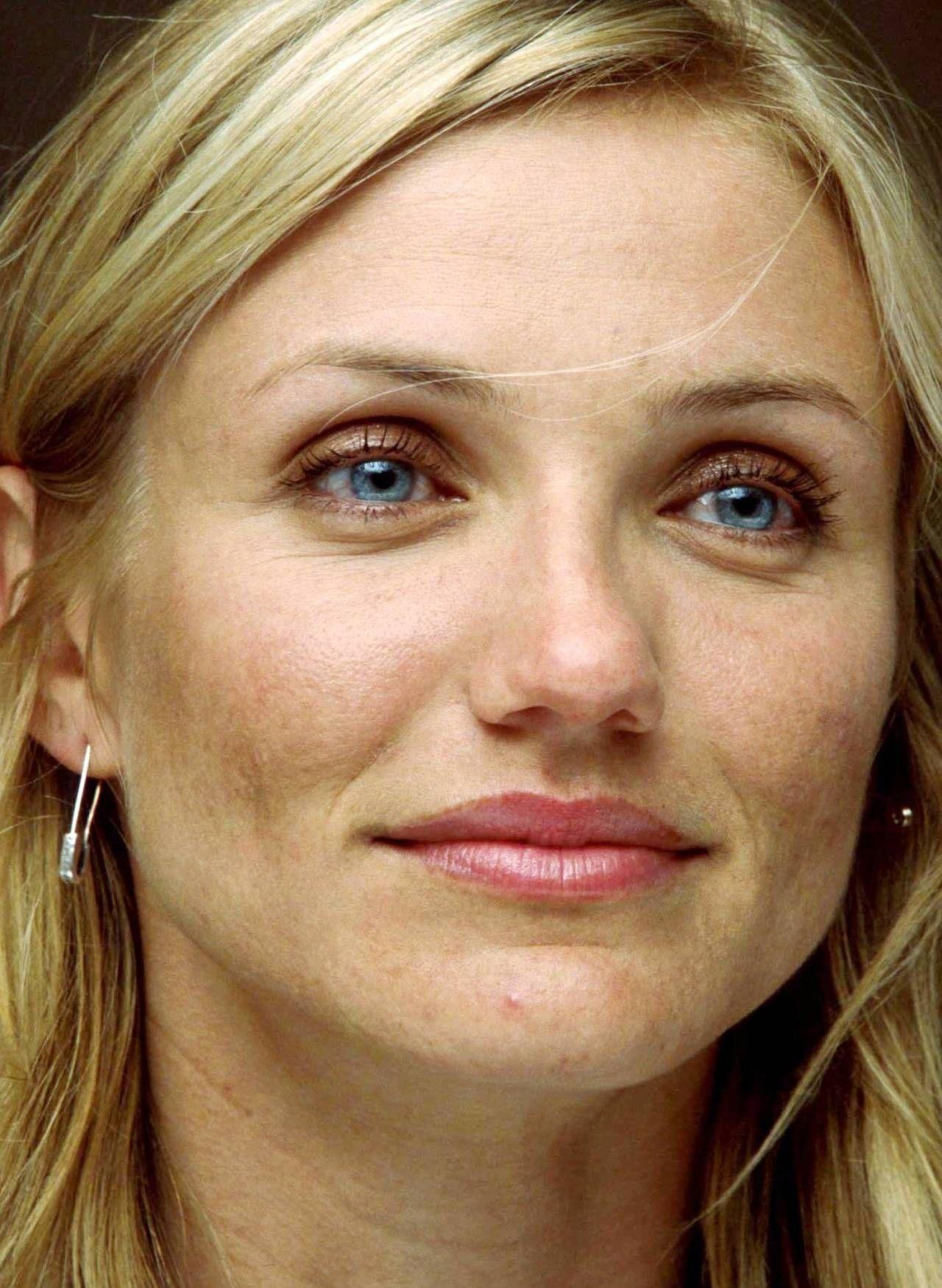 Acne and facial hair female