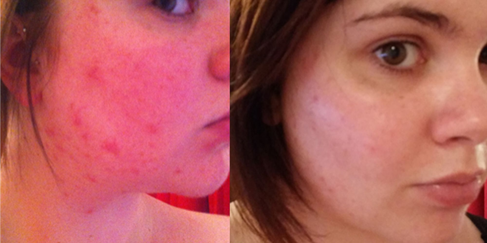 effaclar duo before and after