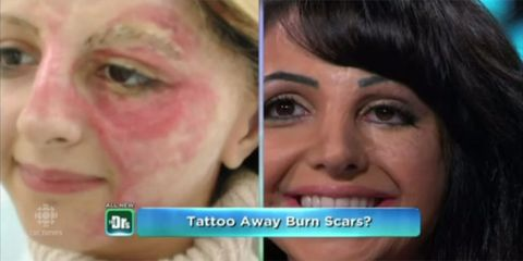 7f4e6e173 Tattoo artist conceals burn victim's scars - the new technique changing the  lives of those bearing