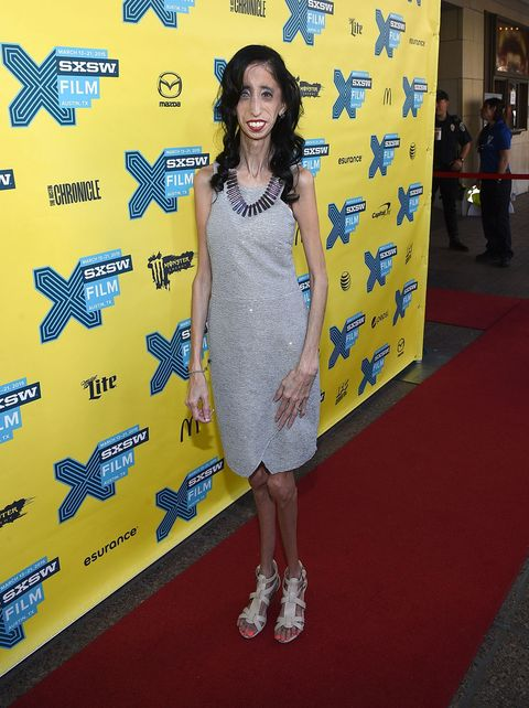 """Being called """"The World's Ugliest Woman"""" inspired Lizzie Velasquez to help others"""