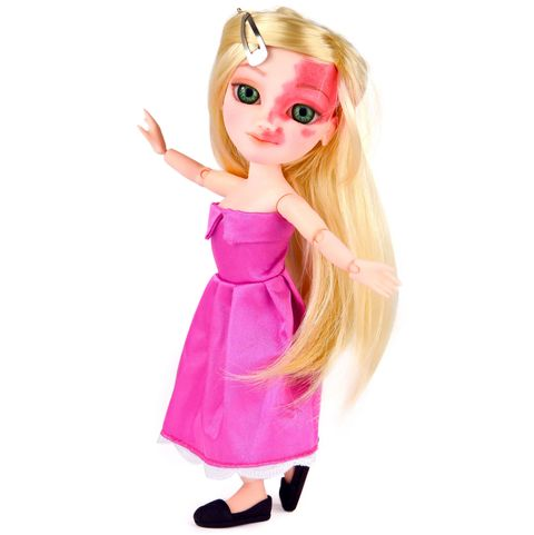 Dolls with disabilities are changing the toy industry at LAST