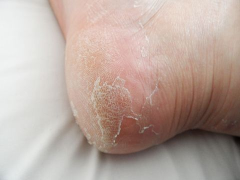 footner exfoliating socks pris