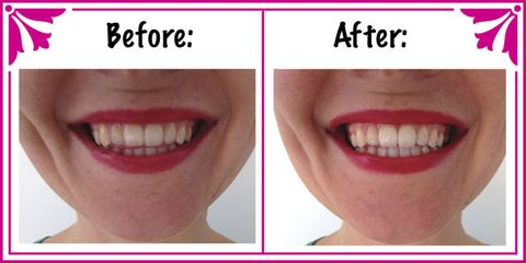 How to make an all-natural teeth whitening treatment