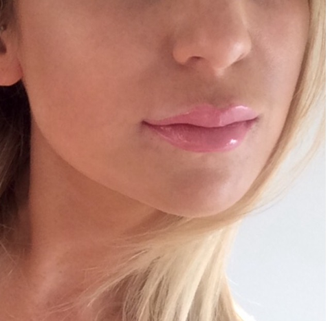 What it really feels like to have lip fillers