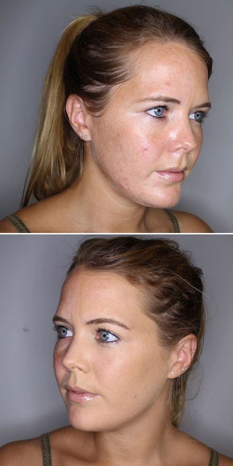 mineral foundation for acne