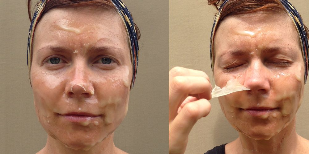 This DIY facial peel will get rid of