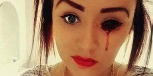 17-year-old Marnie-Rae girl bleeds from her eyes and nobody knows why