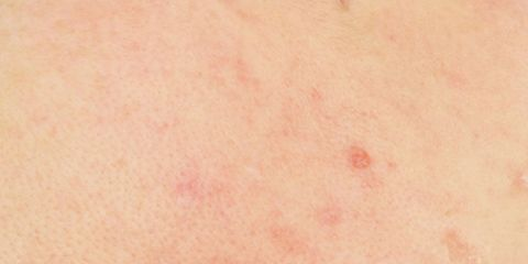7 ways to bust acne for good