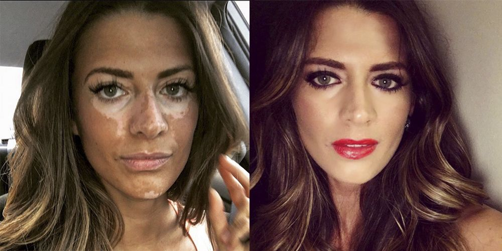 Model Who Hid Her Vitiligo For 10 Years Goes Viral After Powerful Post About Beauty