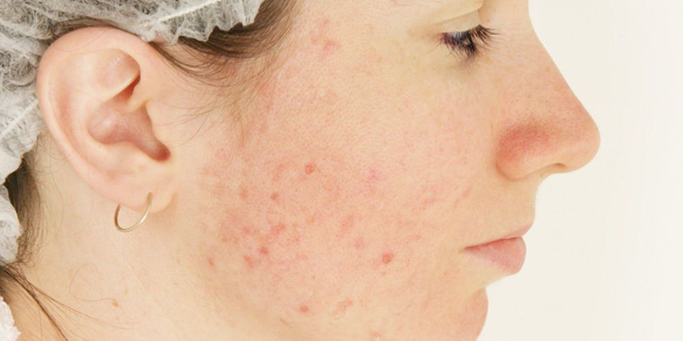 Foods to help get rid of acne
