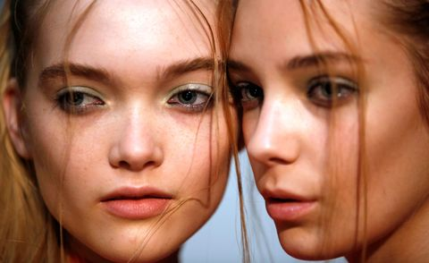 Here's how to fade those annoying acne scars...
