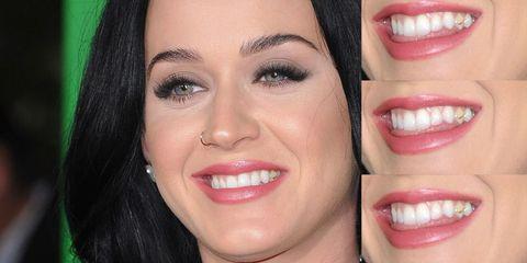 Katy Perry Teeth Before