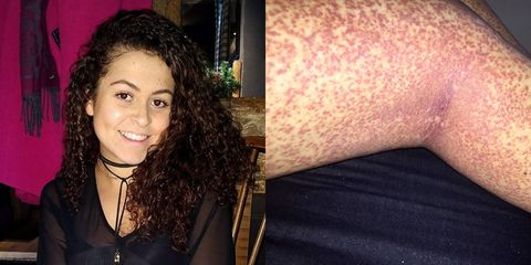 This woman thought she had a shaving rash but it turned out to be cancer