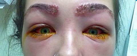 This girl was almost left blind after tinting her eyebrows ...