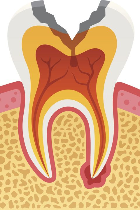 "<p>Folks with poor oral hygiene or gum disease could be at higher risk of developing — or having — Alzheimer's disease, according to a <a href=""http://www.medicalnewstoday.com/articles/264164.php"" data-tracking-id=""recirc-text-link"" target=""_blank"">July 2013 study</a>, which found a greater presence of a periodontal disease-related bacteria, <em data-redactor-tag=""em"" data-verified=""redactor"">Porphyromonas gingivalis</em>, in the brains of people with dementia. The <a href=""http://blog.alz.org/is-alzheimers-really-linked-to-poor-dental-health/"" target=""_blank"" data-tracking-id=""recirc-text-link"">Alzheimer's Association points out</a> gum disease doesn't <em data-redactor-tag=""em"" data-verified=""redactor"">cause</em> dementia, and it's much more likely Alzheimer's causes people to forget to take good care of their teeth.<br></p><p><strong data-redactor-tag=""strong"" data-verified=""redactor"">MORE: </strong><a href=""http://www.countryliving.co.uk/wellbeing/news/a1657/surprising-symptoms-of-dementia/"" target=""_blank"" data-tracking-id=""recirc-text-link""><strong data-redactor-tag=""strong"" data-verified=""redactor"">7 surprising symptoms of dementia</strong></a></p>"