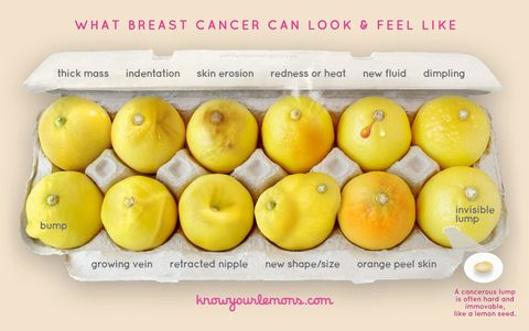This Viral Photo Literally Describes All Of The Symptoms Of Breast