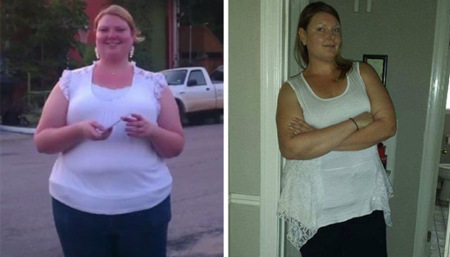 Surgical procedures to help the extremely obese lose weight involve image 6