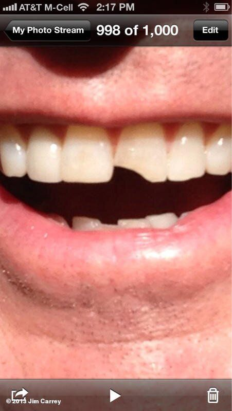 Jim Carrey shows 'Dumber' tooth picture