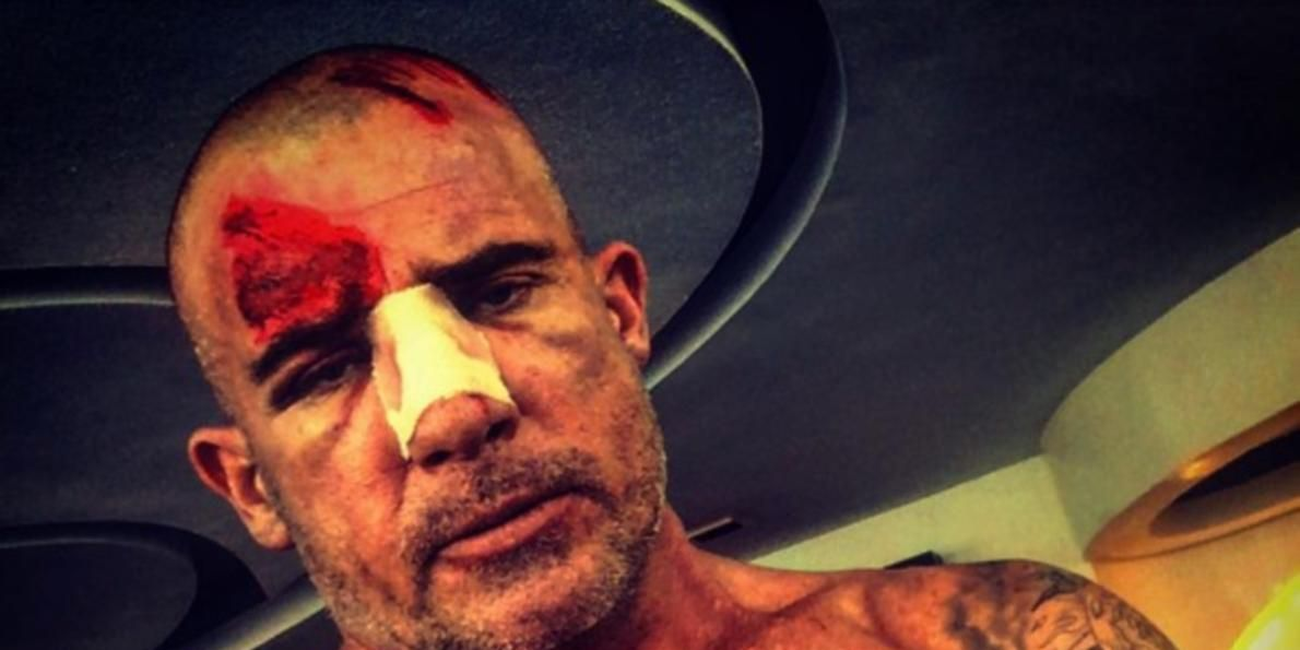 Dominic Purcell shows the injury he received on Prison Break set