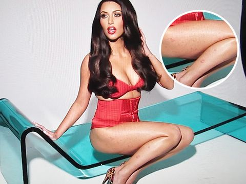 28db74573e718 Kim Kardashian West has learned to live with psoriasis - but still  describes it as her