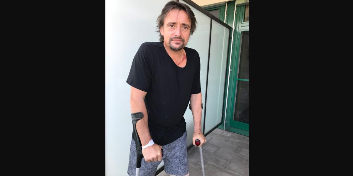 Richard Hammond on crutches
