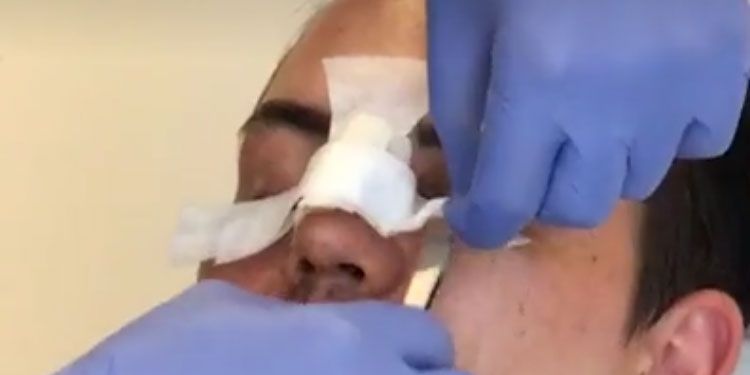 Bobby Norris reveals results from nose job