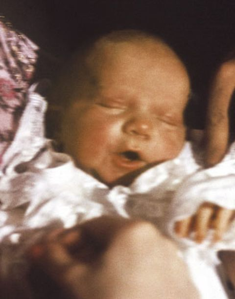 Lip, Cheek, Skin, Child, Baby & toddler clothing, Comfort, Toddler, Bedtime, Baby, Sleep,