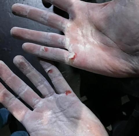 Hand, Finger, Skin, Nail, Flesh, Joint, Pain, Gesture, Thumb,