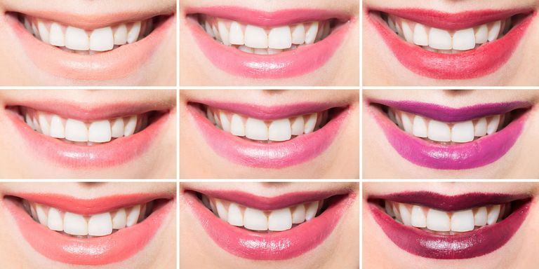 Whitening Treatment You Will Look In The Mirror Usually With Great Surprise If We Do Not Whiten Your Teeth A Minimum Of 4 Shades Be