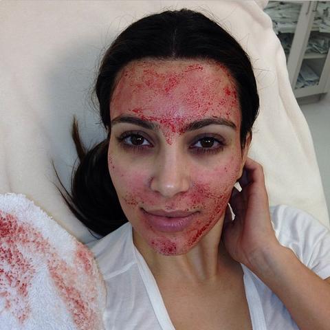 "Tonight on Kourtney &amp; Kim Take Miami!!!<a href=""https://instagram.com/explore/tags/vampirefacial/"">#VampireFacial</a> <a href=""https://instagram.com/explore/tags/kktm/"">#kktm</a>  —<a target=""_blank"" href=""https://instagram.com/p/WsspMAuS2A/"">@kimkardashian</a>"