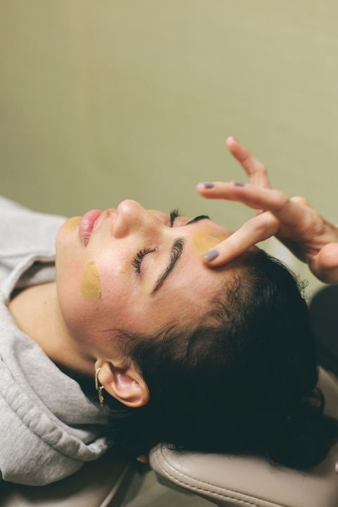 Guide to Chemical Facial Peels - Treatment, Recovery and