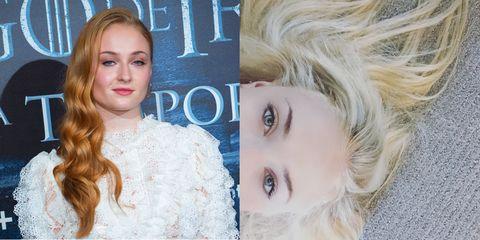 Hair, Lip, Eye, Hairstyle, Chin, Forehead, Eyebrow, Eyelash, Iris, Organ,