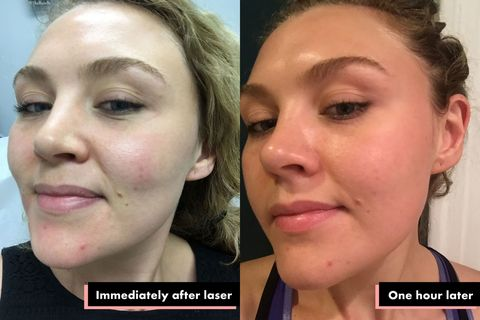 What Happens When You Get Laser Treatments for Acne Scars