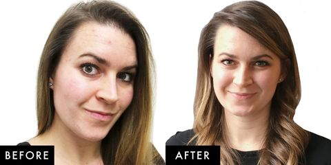 This Vitamin C Treatment Promises Better Skin in 7 Days  So We Tried It