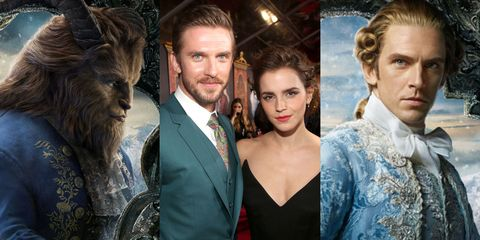 Hair, Nose, Human, Eye, Coat, Suit, Formal wear, Beard, Fur, Tie,