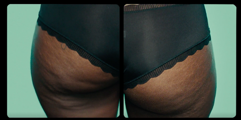 Undergarment, Skin, Clothing, Underpants, Briefs, Thigh, Lingerie, Leg, Undergarment, Hip,
