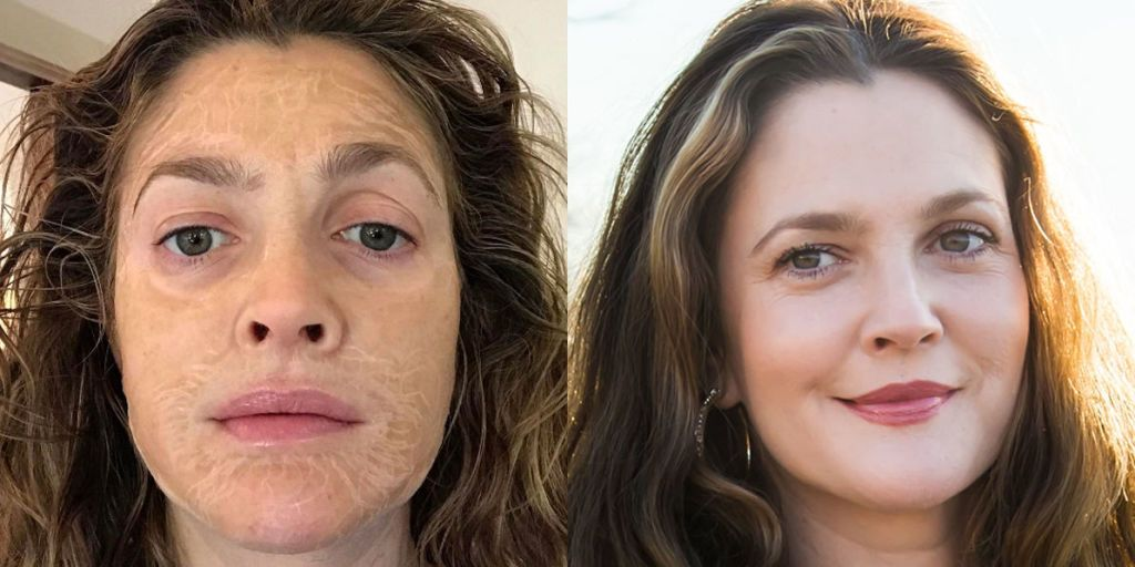 This Face Mask Makes You Look 100 Years Old, Then 10 Years Younger
