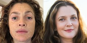 How To Do A Chemical Peel At Home Dos And Dont S Of