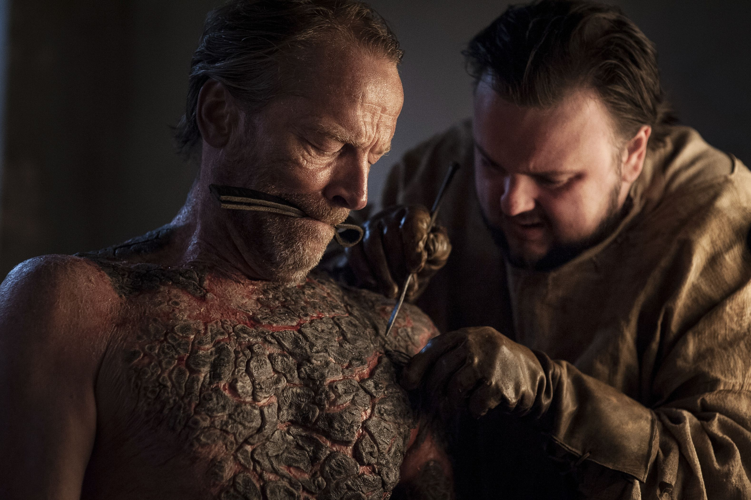 Image result for samwell tarly curing greyscale