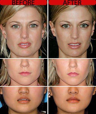 Danger of botox facial atrophy images 559