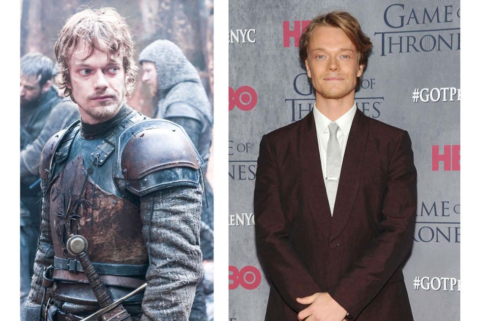 Theon Greyjoy (Alfie Allen) Transformation : 8, but only because Alfie Allen doesn't have the look of someone tortured until his breaking point. (Good thing it's not the other way around?