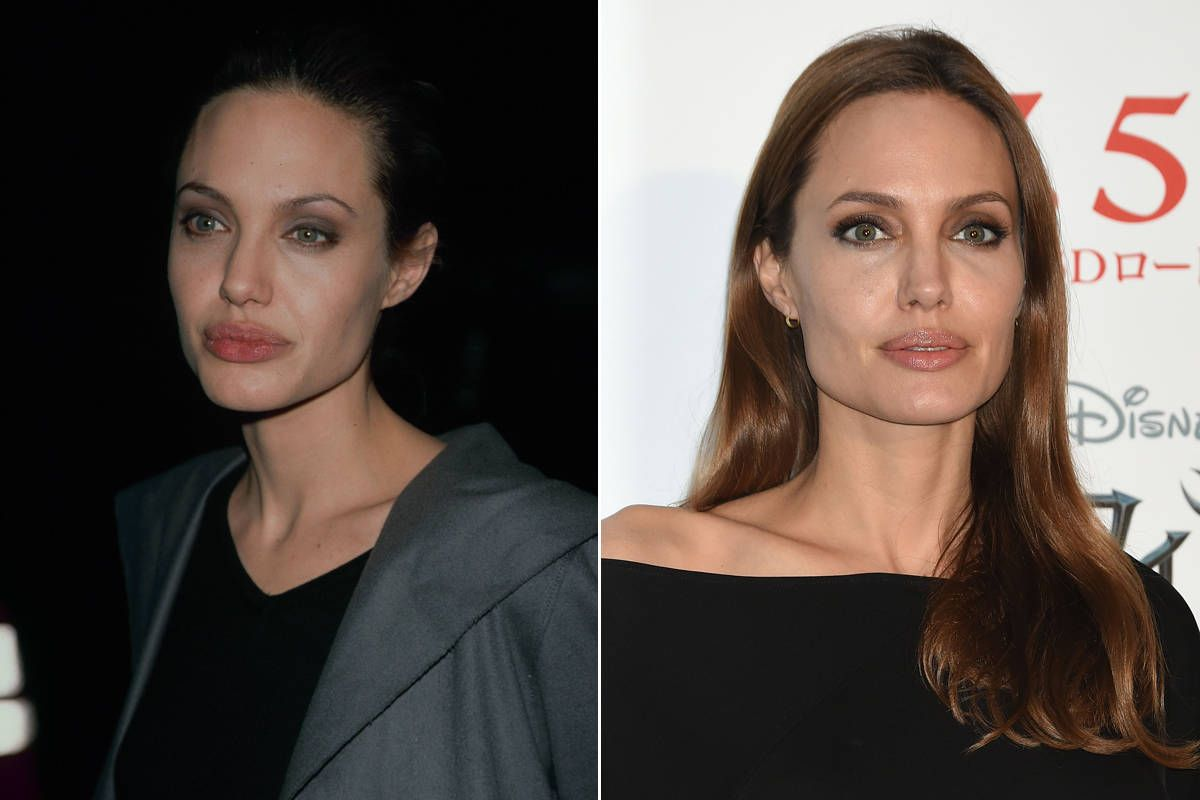Before And After Celebrity Eyebrows Best Celebrity Eyebrow