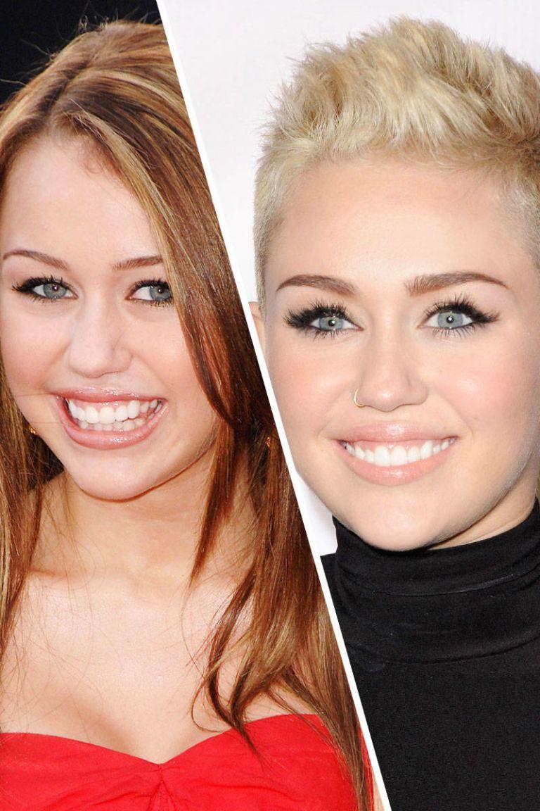 Celebrity who had braces three