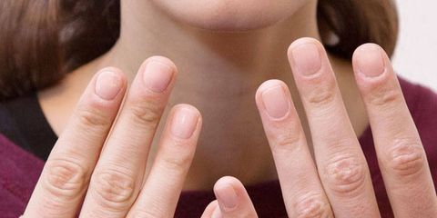 Treatment for Brittle Nails - How to Strengthen Weak and Brittle Nails