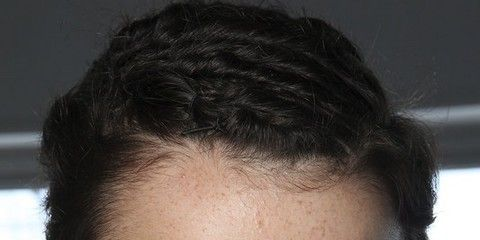 Hair, Face, Head, Nose, Mouth, Lip, Cheek, Hairstyle, Skin, Chin,