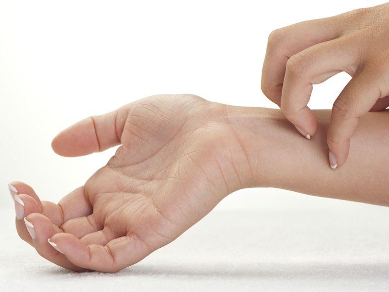 Dermatite seborroica, 10 efficaci rimedi naturali
