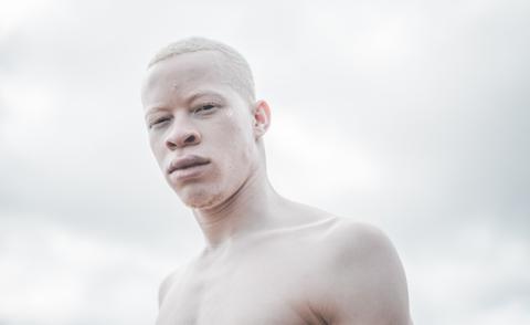 sanele-junior-xaba-modello-albino