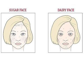 Do You Have Dairy Or Wine Face? Here's What Could Be Causing Your